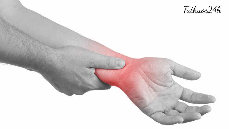 Những thông tin quan trọng mà bạn cần biết về viêm khớp cổ tay