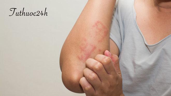 Bệnh chàm là gì? Nguyên nhân và cách phòng tránh căn bệnh này