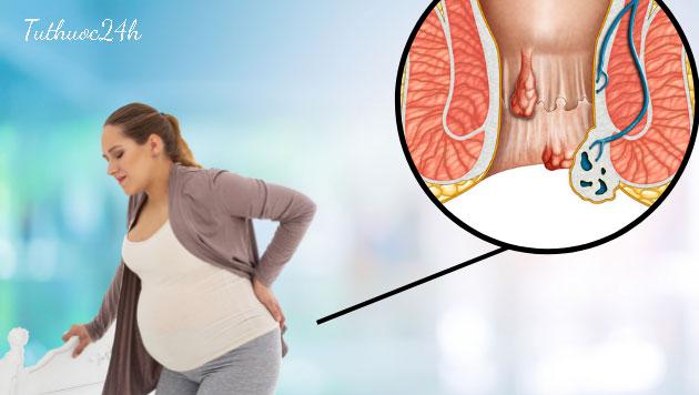 Những thông tin quan trọng cần chú ý nếu bị trĩ khi mang thai