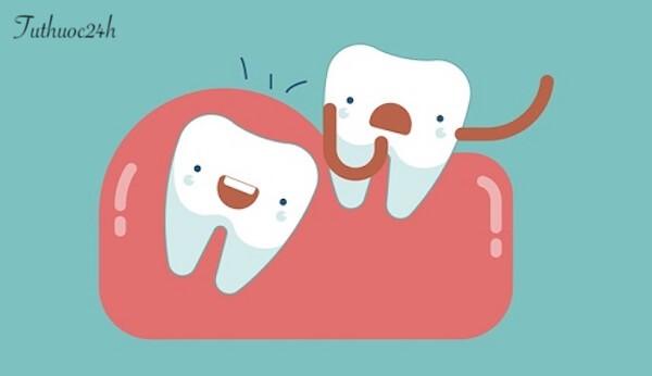 Biến chứng răng khôn thường có nguy hiểm không? Có nên nhổ không?