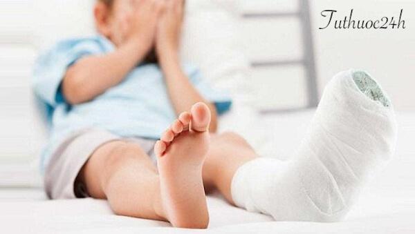 Chia sẻ cách chữa bong gân hiệu quả giúp tránh các biến chứng về sau