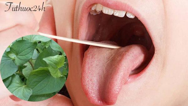 Những lưu ý khi thực hiện chữa viêm amidan tại nhà