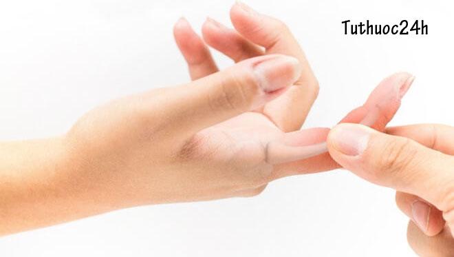 Viêm khớp ngón tay  và cách chữa trị hiệu quả