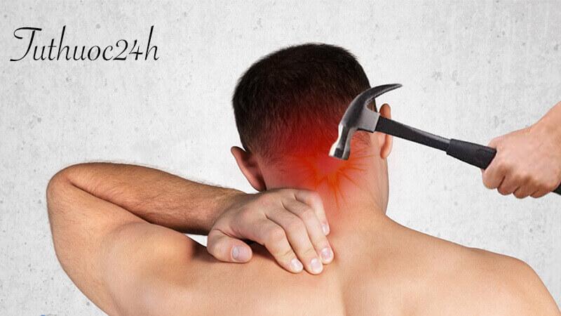 Những thông tin cần biết về căn bệnh đau nửa đầu sau