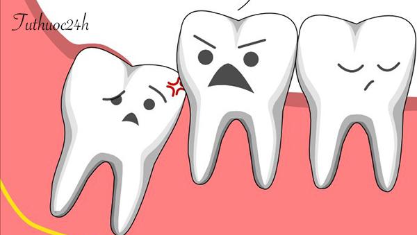Những dấu hiệu đau răng khôn bạn cần phát hiện sớm để giảm cơn đau