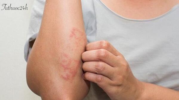 Các mẹo chữa dị ứng da đơn giản mà hiệu quả tại nhà