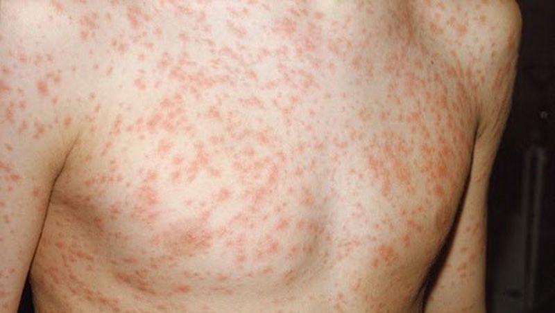 Một số biện pháp đơn giản chữa trị bệnh sốt phát ban cho trẻ mà ba mẹ nên biết