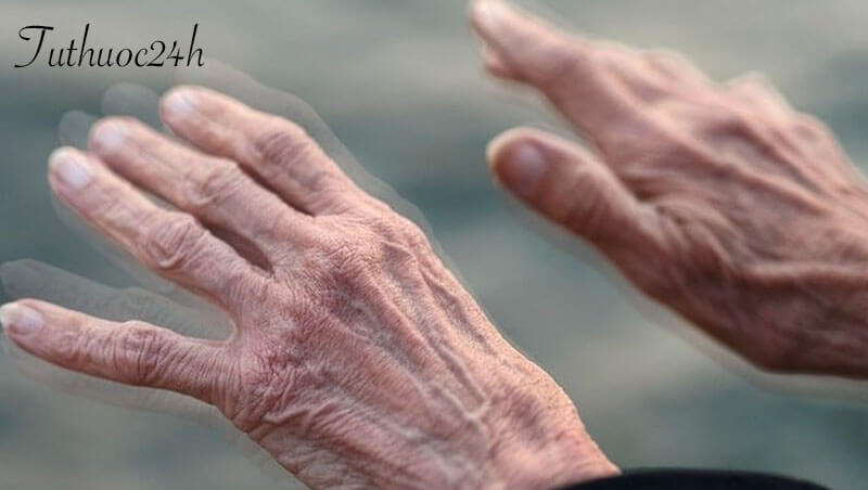 Dấu hiệu bệnh parkinson giai đoạn cuối và cách điều trị hiệu quả