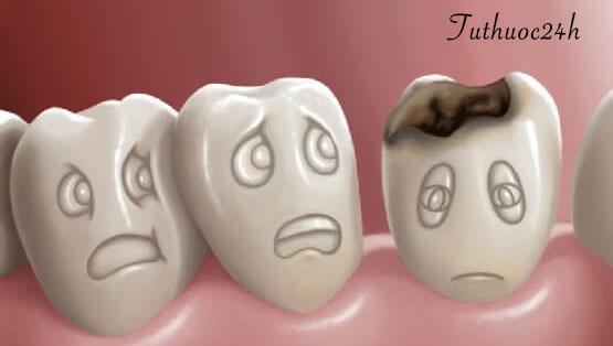 7 cách chữa sâu răng tại nhà cực kì đơn giản