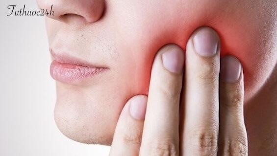 Răng khôn mọc lệch ra má có nguy hiểm không và chữa trị như thế nào?