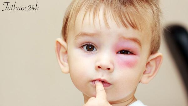 Nguyên nhân gây sưng mí mắt ở trẻ em - Cách phòng tránh và điều trị