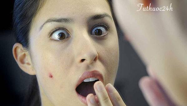 Bệnh thuỷ đậu ở người lớn bao lâu thì khỏi? Những biến chứng nguy hiểm