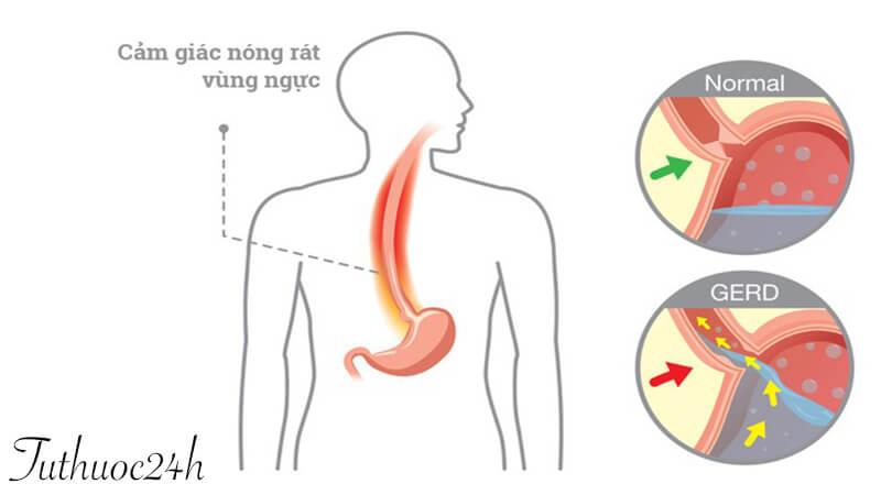 Bệnh trào ngược dạ dày thực quản nên uống thuốc gì