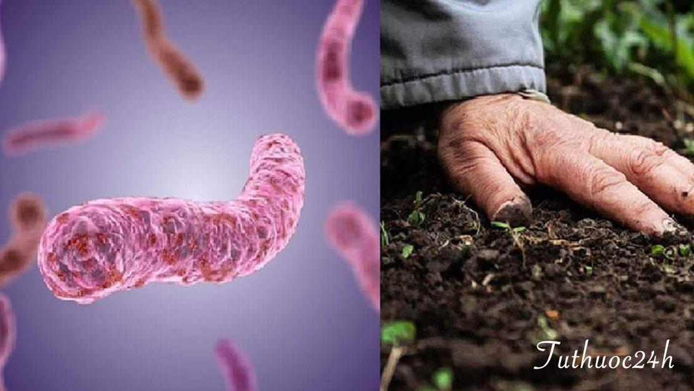 Nguy hiểm của vi khuẩn whitmore và những cách phòng tránh mọi người cần biết