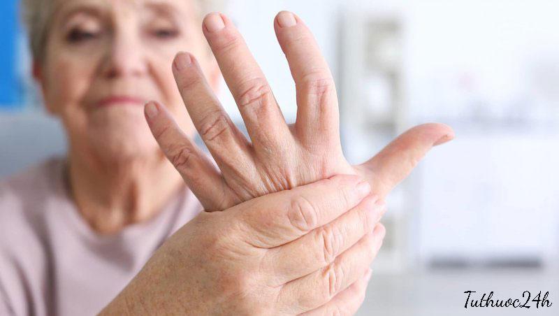 Viêm đa khớp là bệnh gì? Cách điều trị bệnh viêm đa khớp