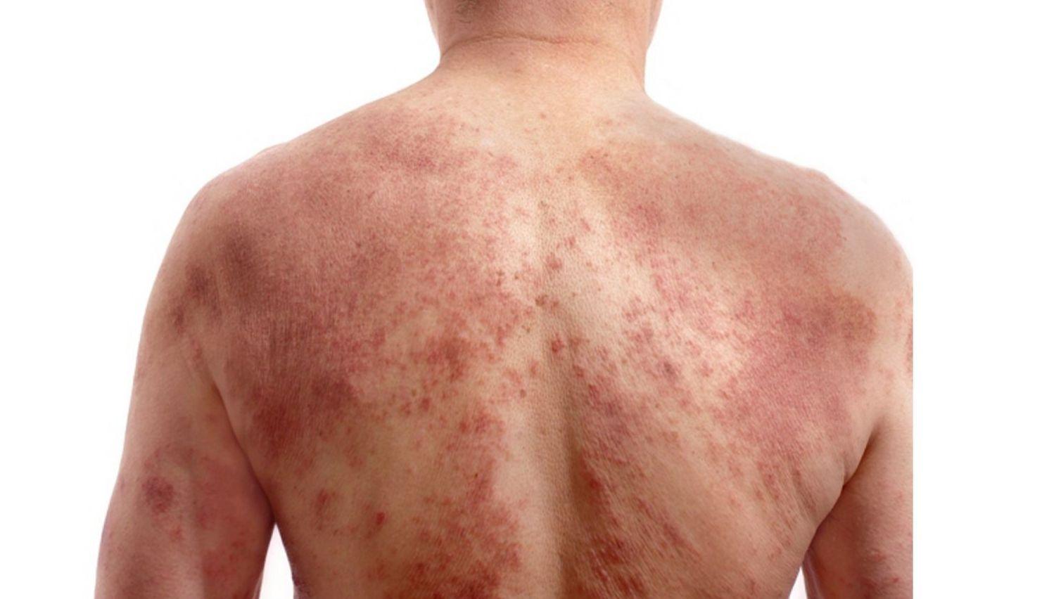Giời leo, một nỗi phiền toái về bệnh ngoài da