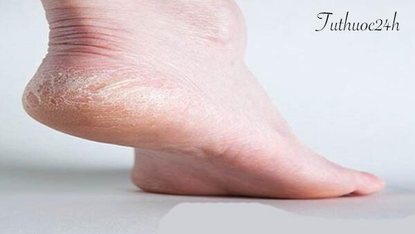 Chữa dứt điểm bệnh á sừng ở chân tại nhà bằng phương pháp dân gian