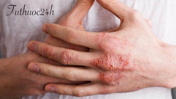 Bệnh á sừng ở tay và những phương pháp chữa trị tại nhà hiệu quả