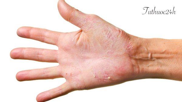 Bệnh á sừng và những lưu ý bạn cần biết để phòng tránh