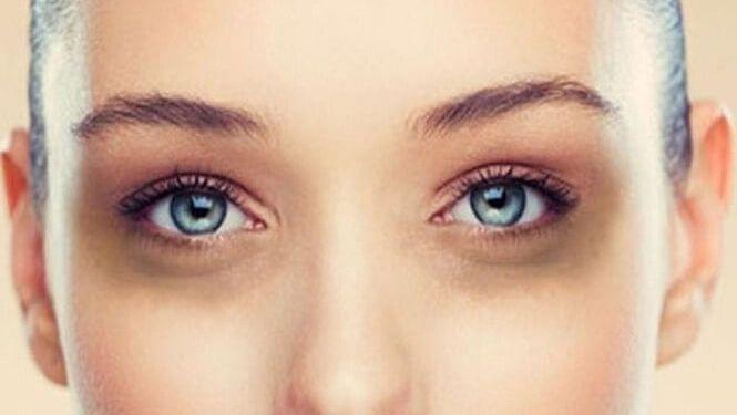 Bí quyết giúp bạn loại bỏ đôi mắt thâm quầng khi phải thức khuya