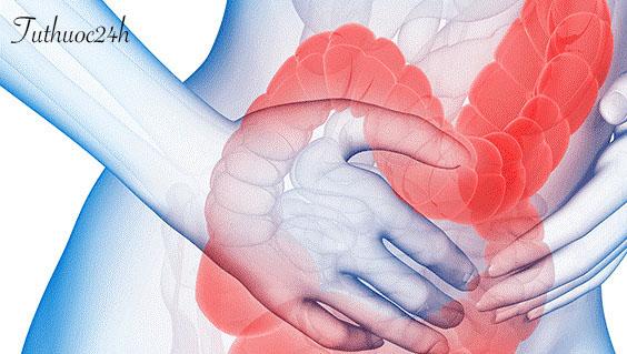 Bật mí những cách chữa bệnh viêm đại tràng ít người biết