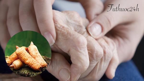 Chữa bệnh Parkinson bằng Đông y như thế nào là đúng cách và hiệu quả?