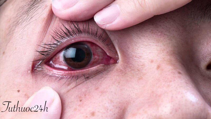 Tìm hiểu phương pháp chữa trị viêm kết mạc dị ứng bằng Đông y