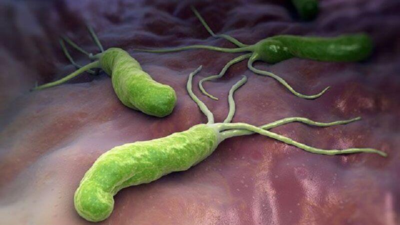 Có thật mắc vi khuẩn HP là bị ung thư dạ dày?- Chuyên gia nói gì về điều này
