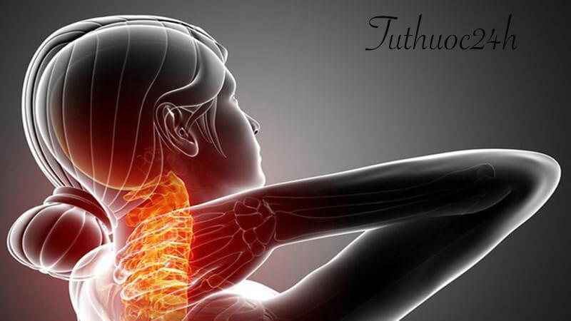 Cách chữa đau nửa đầu vai gáy hiệu quả mà bạn nên biết