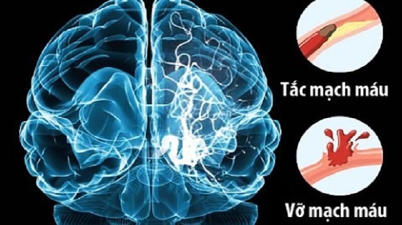 Đột quỵ não là gì? Nguyên nhân - dấu hiệu - cách phòng ngừa đột quỵ não