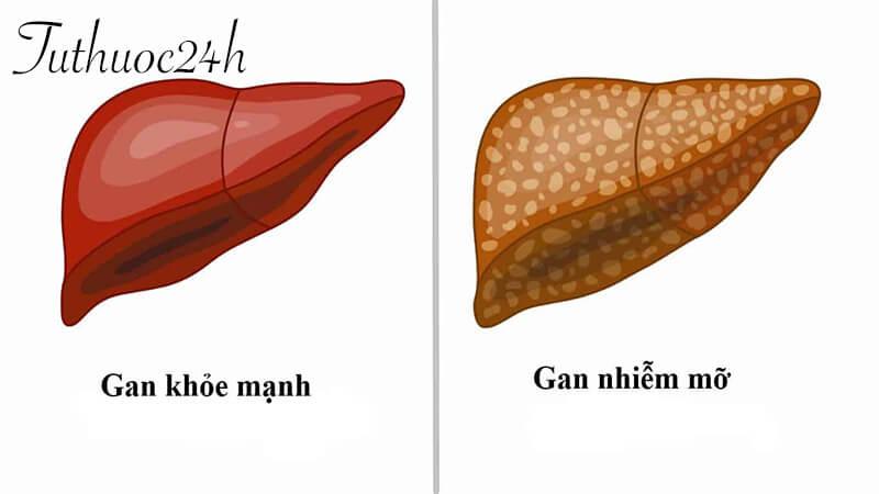 Chế độ ăn cho người bệnh gan nhiễm mỡ và muốn phòng bệnh