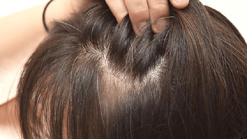Giải mã bệnh tóc bạc sớm nguyên nhân và cách khắc phục