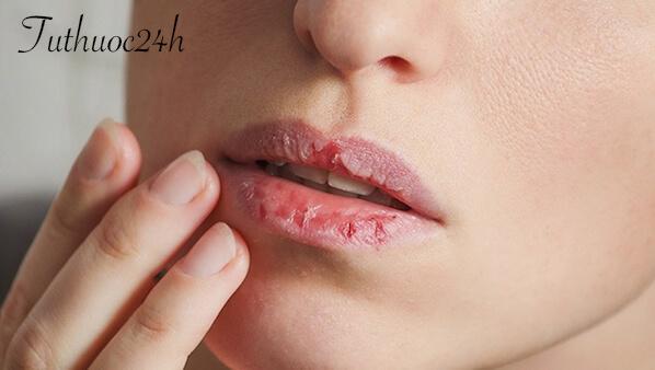 Cách trị môi khô nứt nẻ giúp đôi môi căng mọng trở lại