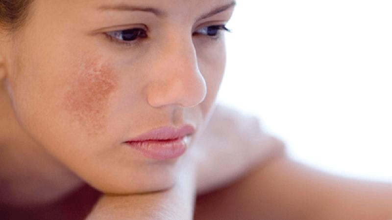 Những điều cần biết về trị nám da sau sinh