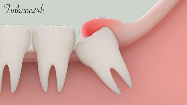 Răng khôn mọc lệch có nguy hiểm không? Có nên nhổ răng khôn
