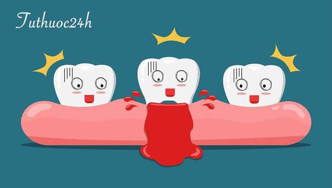 Chảy máu chân răng – dấu hiệu cảnh báo mắc bệnh răng miệng nghiêm trọng