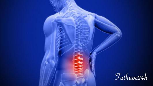 Lời giải đáp cho căn bệnh thoát vị đĩa đệm cột sống thắt lưng