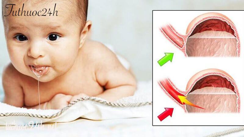 Trào ngược dạ dày ở trẻ sơ sinh mẹ không nên bỏ qua