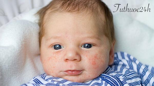Trẻ sơ sinh nẻ mặt và cách chữa trị mẹ cần chú ý