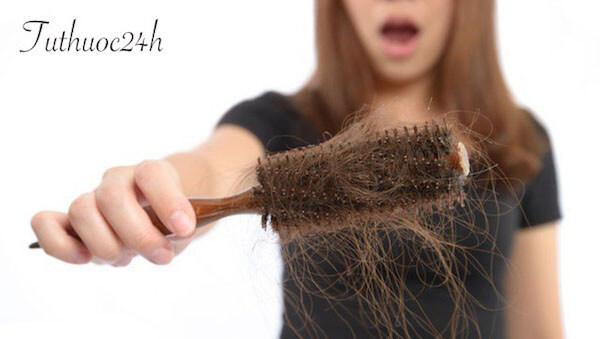 Triệu chứng bệnh nấm da đầu và cách điều trị nấm da đầu tận gốc