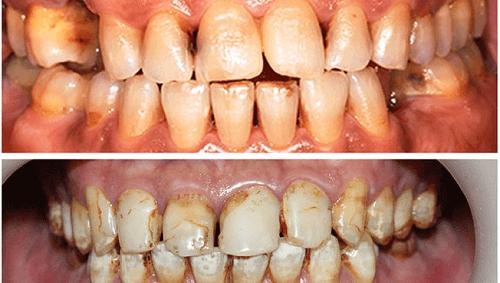 Răng bị phá hủy ố vàng xỉn màu vì dùng những thực phẩm hàng ngày này