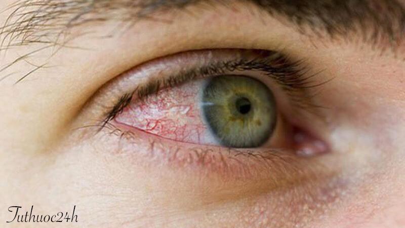 Viêm kết mạc mắt có nguy hiểm không? Cùng tìm câu trả lời nào