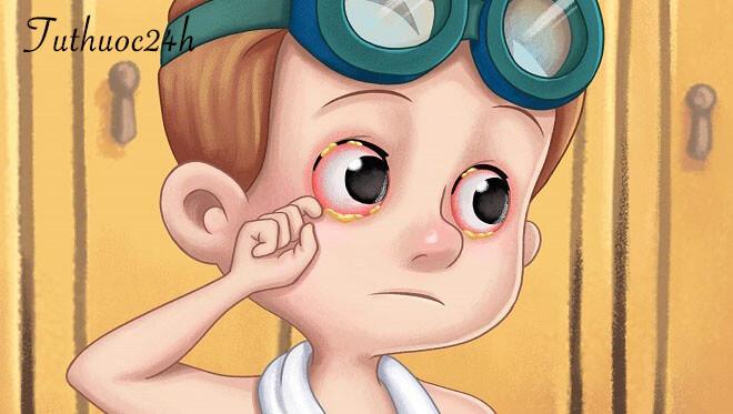 Viêm kết mạc ở trẻ sơ sinh và cách điều trị