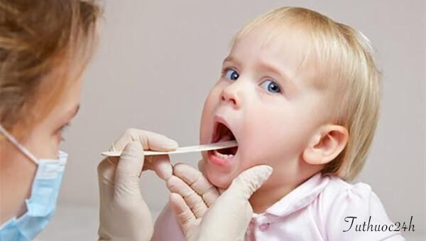 Viêm lợi ở trẻ em nên được điều trị bằng biện pháp nào?