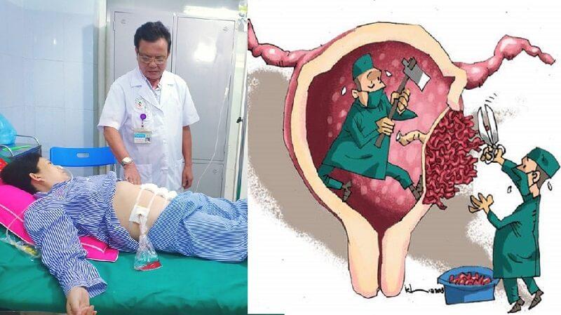 Vỡ tử cung do rau cài răng lược may mắn cả mẹ và bé đều được cứu sống