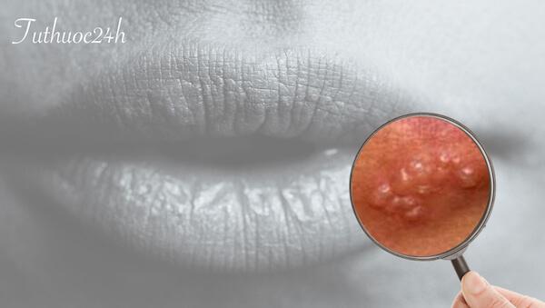 Cách chữa zona thần kinh ở môi đơn giản, hiệu quả nhanh